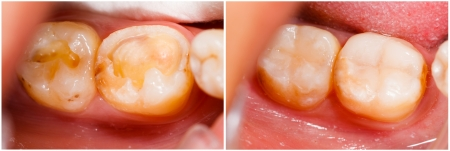 after work: Human denture before and after dental treatment.