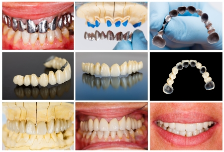 prosthetics: Photographic documentation of the technical steps of dental ceramic bridge.