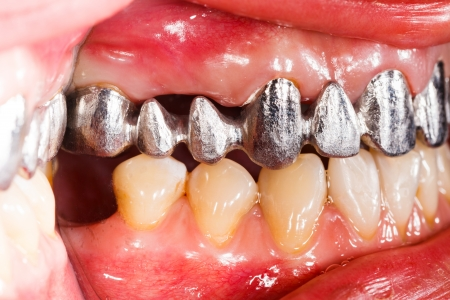 Basis: Metal basis ceramic dental bridge in mouth. Stock Photo