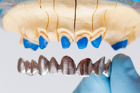 basis: Dental metal basis denture put on dental model.