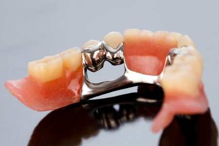 prosthetics: The inner view of a dental skeletal prosthesis with special fixing element.