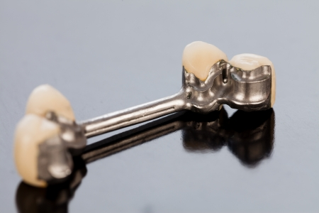 fixate: Details of a dental skeletal prosthesis with special anchoring elements and porcelain crowns.