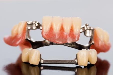 De illsutration van een speciaal vaste tandheelkundige partiële prothese met porseleinen kronen en Dolder. Stockfoto