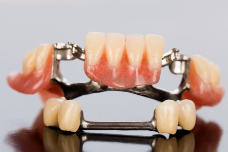 The illsutration of a specially fixed dental partial prosthesis with porcelain crowns and dolder.