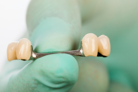 fixate: Dentist showing a dolder and porcelain crowns used for fixing skeletal prosthesis.