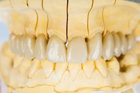 basis: Beautiful porcelain teeth on gypsum model with metallic basis.