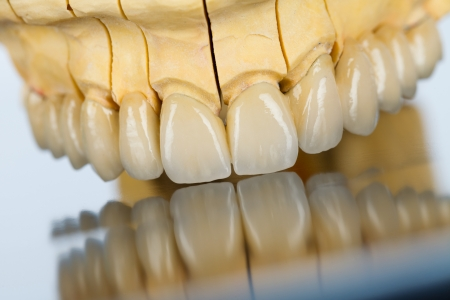 prosthetics: An abstract view of a beautiful porcelain bridge made by dental technician.