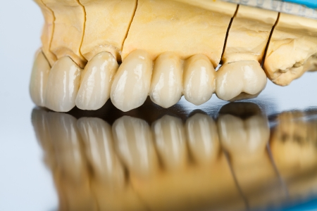 An abstract view of a beautiful ceramic bridge made by dental technician - left side. Archivio Fotografico