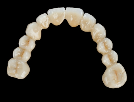 Beautiful dental bridge isolated on black made of ceramic (porcelain) - occlusal view.