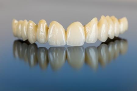 Dientes de cerámica hermoso hecho en la oficina del dentista 's en la superficie del espejo. Foto de archivo