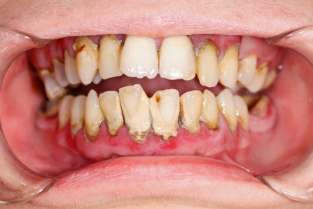 Human mouth before dental treatment plaque on teeth. photo