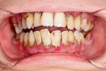 Menschlicher Mund, bevor Zahnbehandlung Plaque auf den Zähnen. Standard-Bild