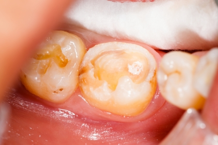 mouth cavity: Cavities in human denture, before treatment.