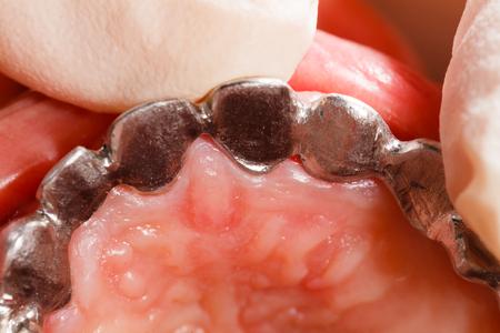 basis: Metal basis ceramic dental bridge in mouth. Stock Photo