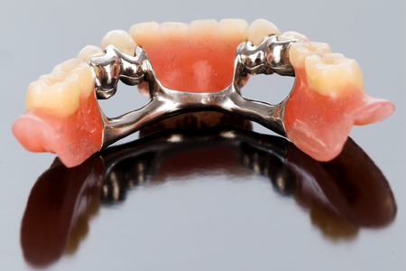 A closeup of a dental skeletal prosthesis with porcelain crowns and dolder.