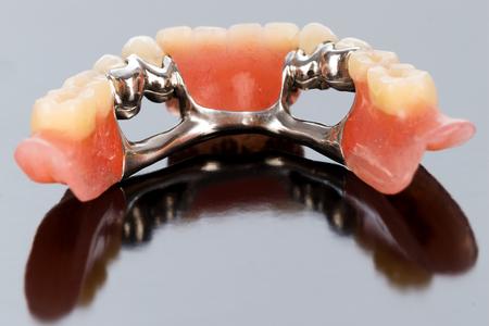 Een close-up van een tandheelkundige skelet prothese met porseleinen kronen en Dolder. Stockfoto