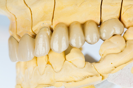 prosthetics: Beautiful porcelain teeth on gypsum model with metallic basis.