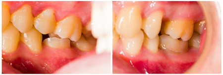 dental resin: Before and after dental treatment, composite filling.