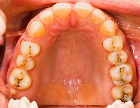 caries dental: Paciente humano con su dentadura en tratamiento dental en la oficina.