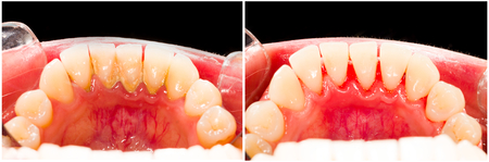 dental caries: Plaque removal dental treatment in dentist office.