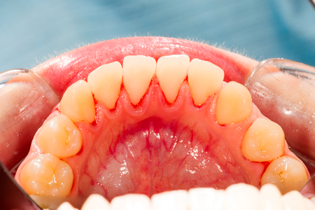 lower teeth: Lower teeth after ultrasonic plaque removal. Stock Photo