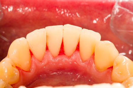 dental plaque: Human denture after plaque removal in dentists office.
