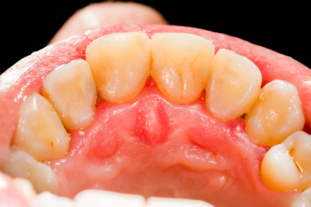 Beautiful upper teeth after dental treatment. Stock Photo - 26421090