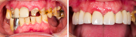 after work: Patients teeth before and after dental treatment. Stock Photo