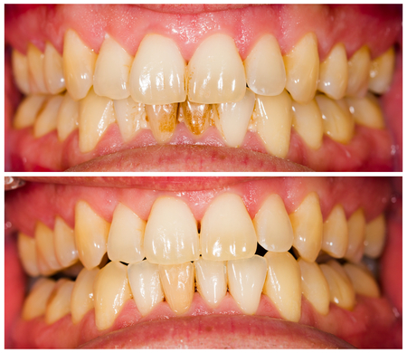 Removed plaque on incisors from patient's lower denture. Archivio Fotografico