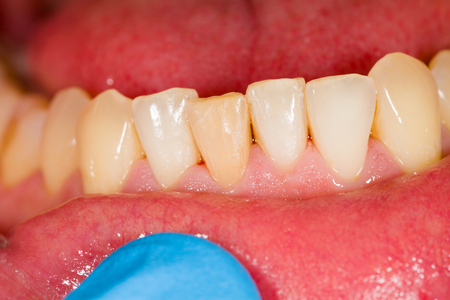 lower teeth: Lower partial teeth of patient at the dentist.