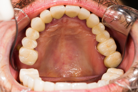 tangent: Entire upper dental teeth bridge in patients mouth.
