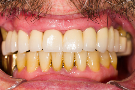 upper: Entire upper dental teeth bridge in patients mouth.