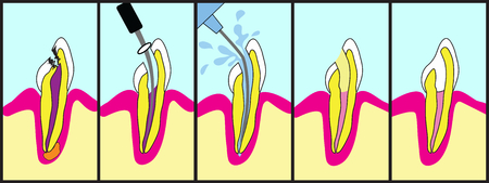 Dental root canal treatment illustrated step by step. photo
