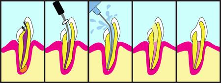 Dental wortelkanaalbehandeling geïllustreerde stap voor stap.
