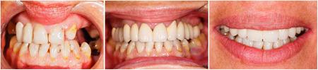 Beeld van menselijke tanden voor en na tandheelkundige behandeling - beforeafter serie.