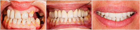Photo de dents humaines avant et après traitement dentaire - BeforeAfter série.