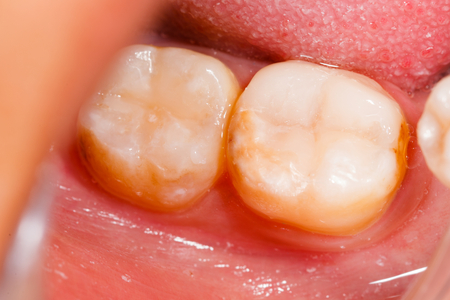 dental resin: Human denture after treatment, filling material. Stock Photo
