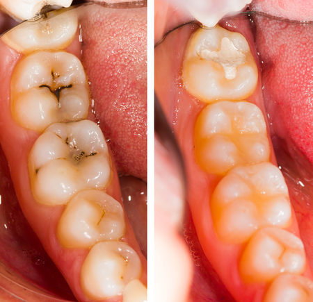 mouth cavity: Before and after dental treatment - beforeafter series.