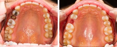 caries dental: Dentadura enfermo antes y después del tratamiento dental. Foto de archivo