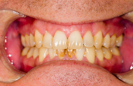 plaque: Dental plaque on denture, sign of smoking habits.