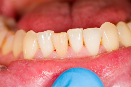 denture: Some healthy teeth of the lower denture.