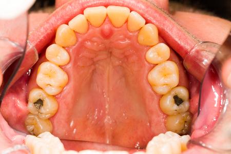 placa bacteriana: Dentadura humana despu�s de la eliminaci�n de la placa, los dientes limpios. Foto de archivo