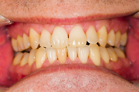 entire: Healthy entire natural denture of a patient.