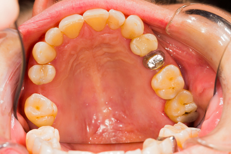 bases: Metal bases for future ceramiic crown for patient.