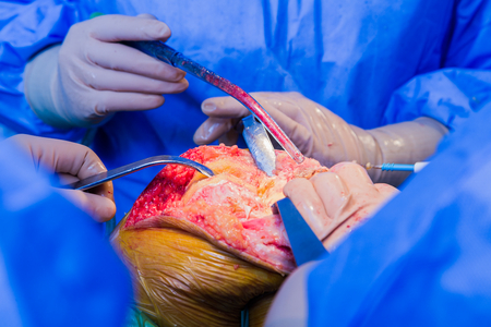explicit: EXPLICIT illustration of a surgical intervention in case of broken joints - arthroplasty in the hospital.