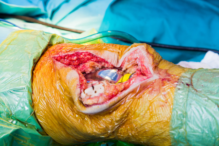 orthopedist: EXPLICIT: a well done arthroplasty with the wound still open to visualize the results.