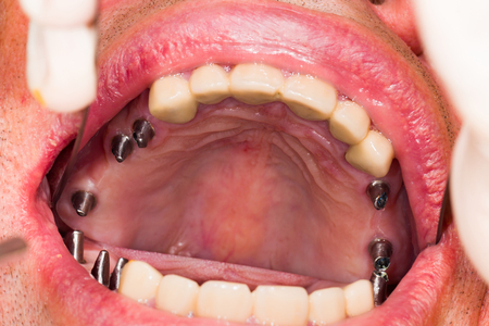 Metallic stubs on dental implants in human mouth.