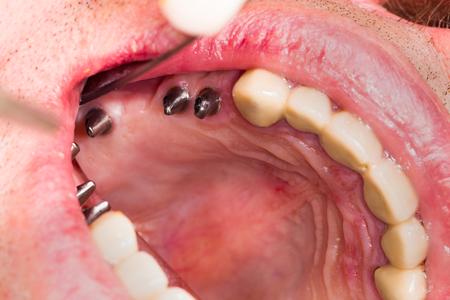 Dental implants in mouth before bonding the metal ceramic bridge.