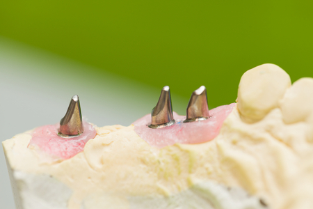 Implant stubs on cypsum casting made by technician before trying them in mouth. Stock Photo