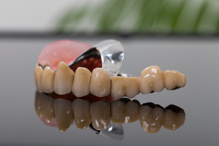 Dental skeletal prosthesis detail nade by dentist and technician with special anchoring systems.